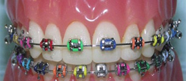 Coloured Braces
