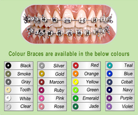 Range of Coloured Bands for Braces