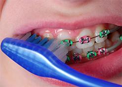 Brushing Coloured Braces